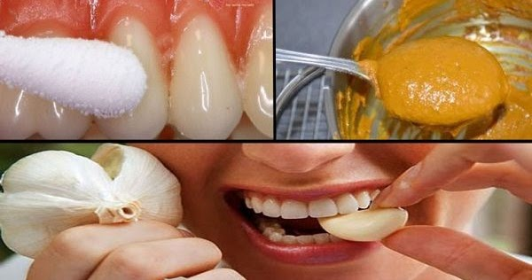how to get rid of severe tooth pain