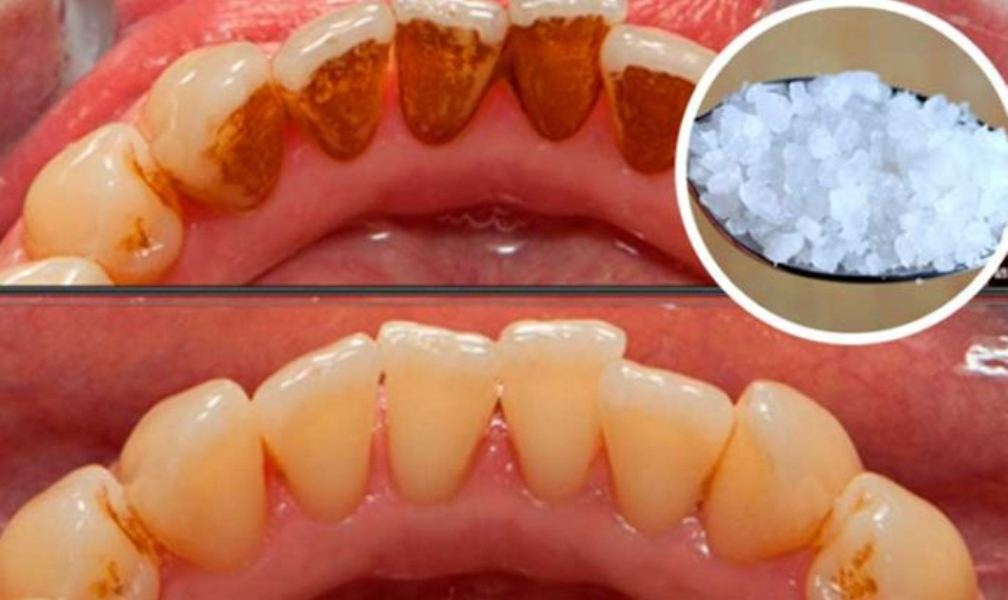 THIS Can Even Whiten EXTREMELY Yellow Teeth and Remove That Nasty