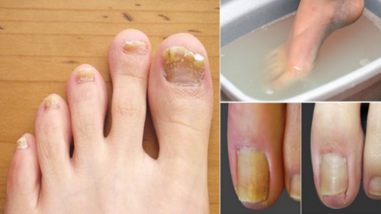 how to make fungus toenails look better